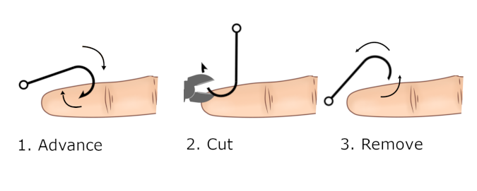 advance and cut fish hook removal method